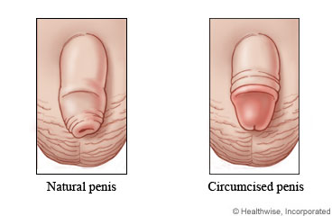 Non circumcised dick