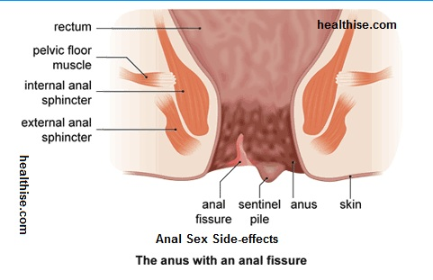 Whats the easiest way to have anal sex