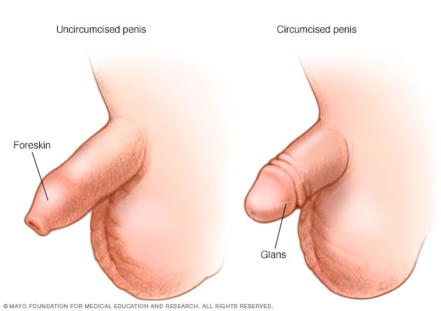 What to do with an uncircumcised penis